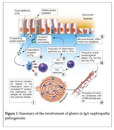 Gluten involvement in IgA Nephropathy