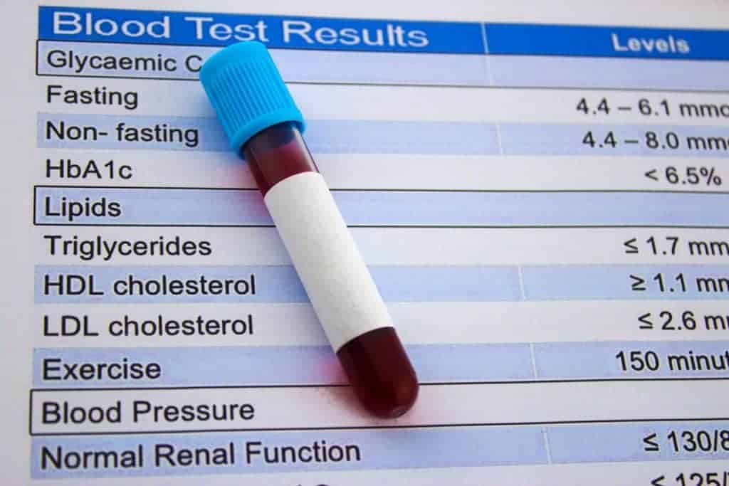 blood tests for cholesterol, complete blood tests for cholesterol, cholesterol and CDK, cholesterol and renal function