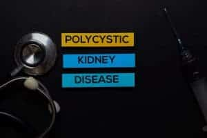 Polycystic Kidney Disease text on Sticky Notes. Top view isolated on office desk. Healthcare/Medical concept