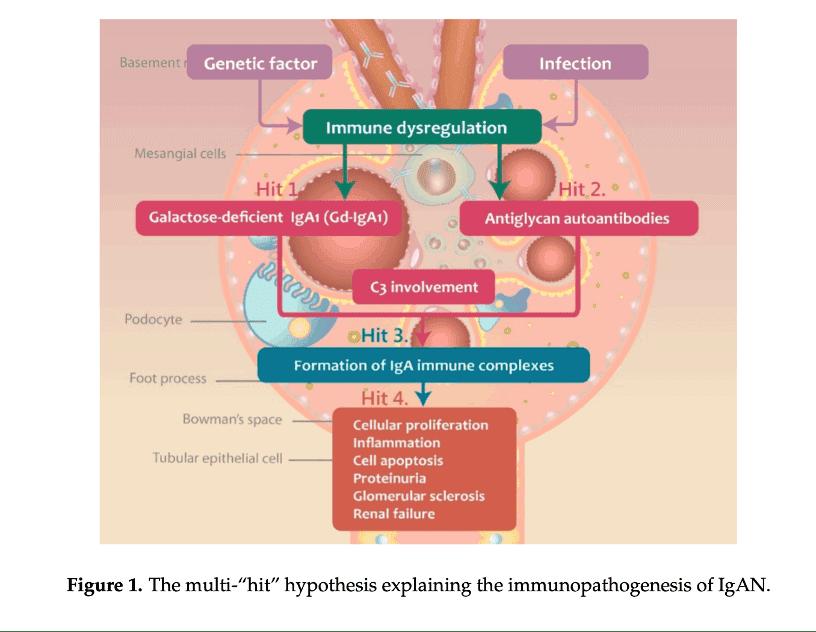 Immune dyregulation and IgA Nephropathy in Kidney disease